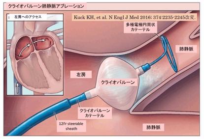 手術 アビ レーション 【医師監修】心臓のアブレーション治療が必要になるのは?
